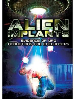 Alien Implants Evidence Of Ufo Abductions And Encounters [Edizione: Regno Unito]